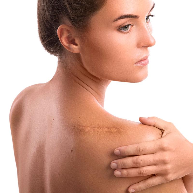 Resección de cicatríz