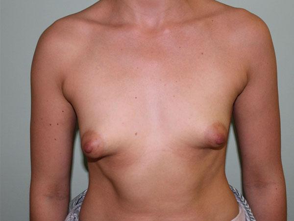 condición de mamas tuberosas